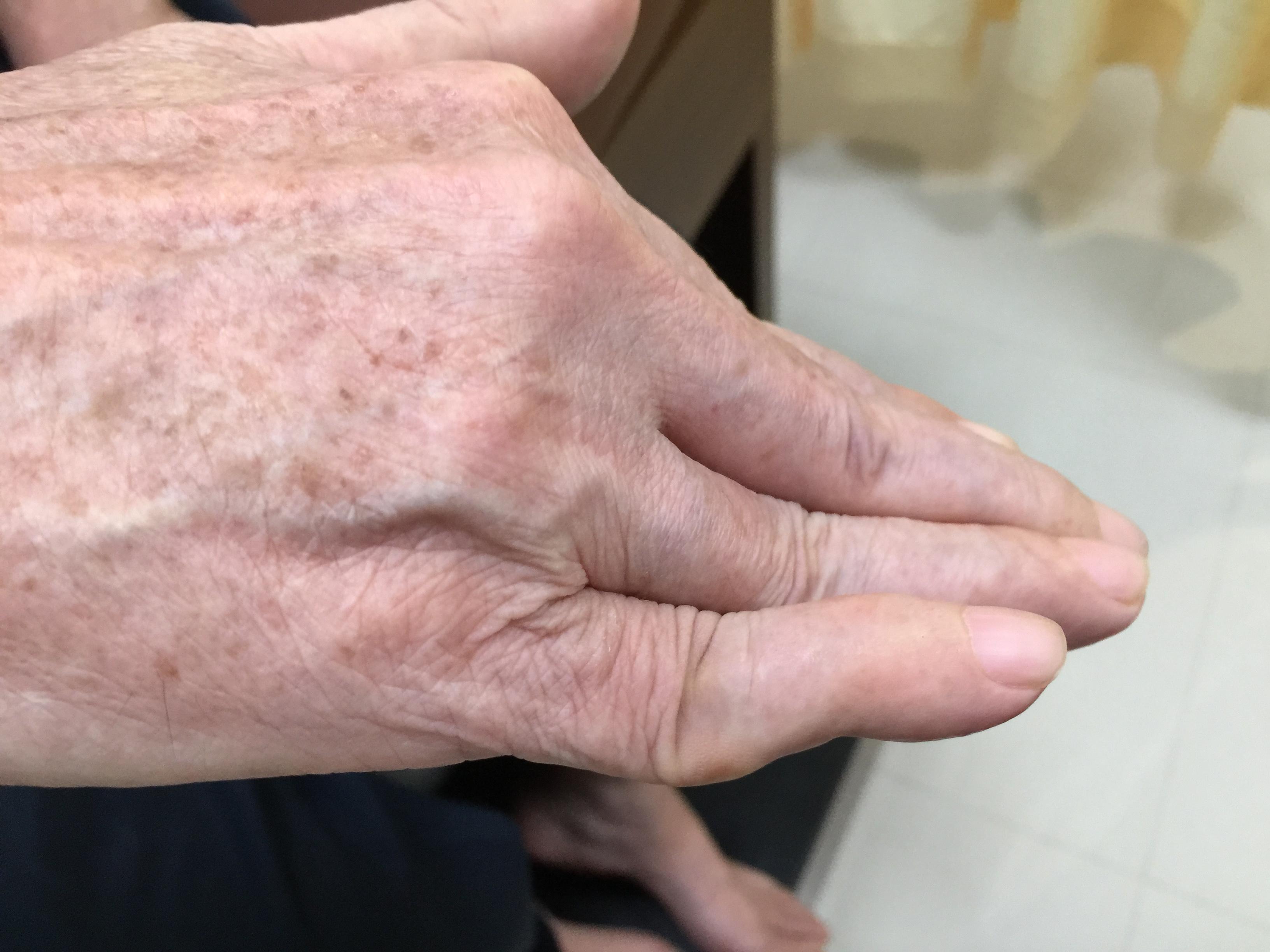 www.DoterRematikAutoimun - Rheumatoid artritis pada tahap lanjut