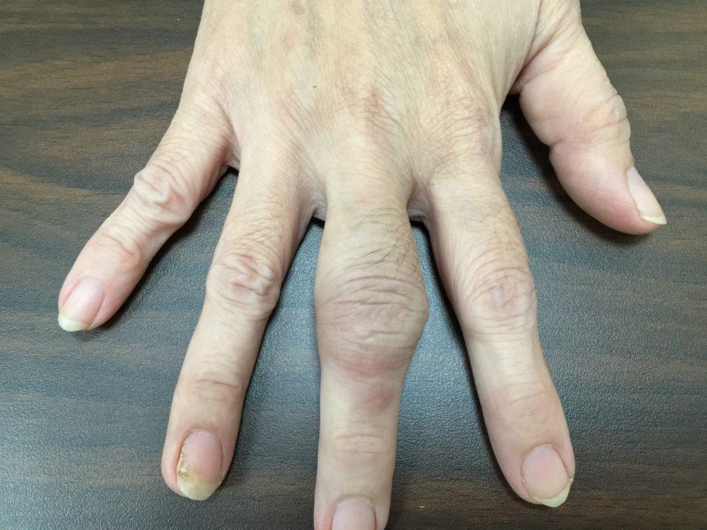 www.DoterRematikAutoimun - Rheumatoid artritis pada tahap awal