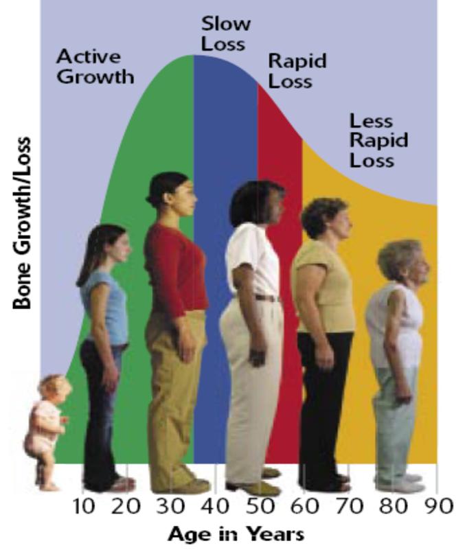 www.DokterRematik Autoimun - Osteoporosis 1