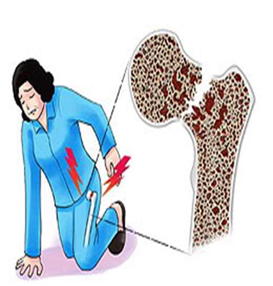 www.DokterRematik Autoimun - Osteoporosis 2