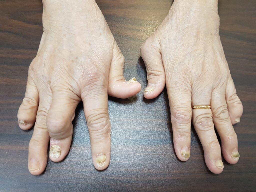 www.DokterRematikAutoimun.com - psoriatic artritis 1