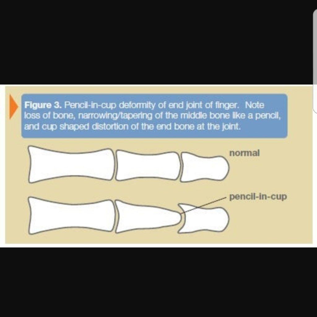 www.DokterRematikAutoimun.com - psoriatic artritis 3