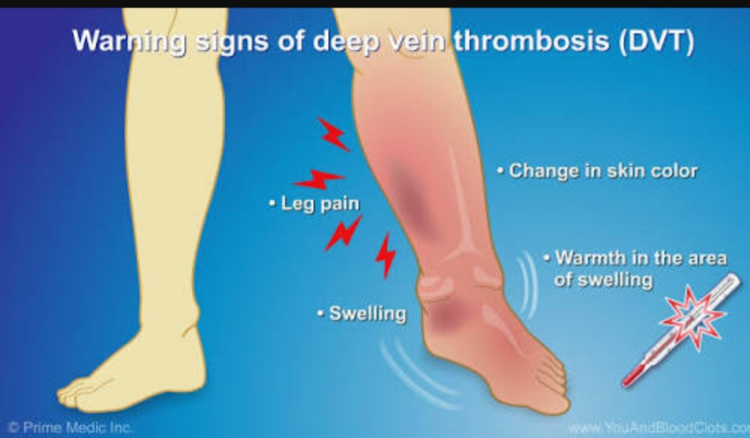 www.DokterRematikAutoimun.com - Antiphospholipid syndrome 2