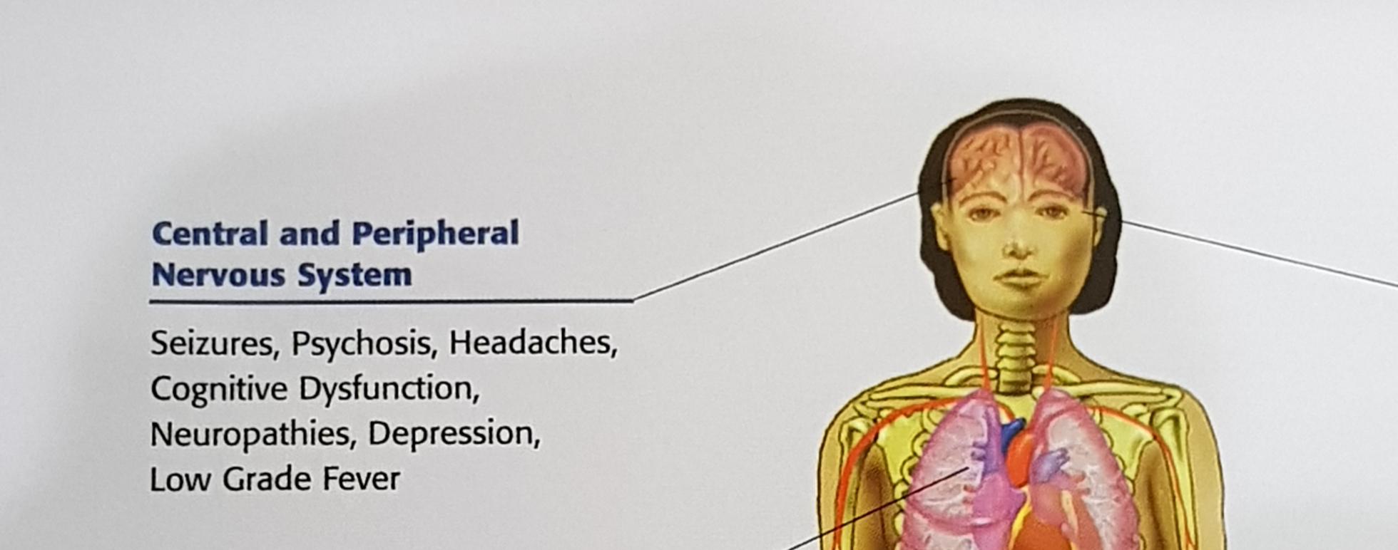 www.DokterRematikAutoimun.com - Brain Fog pada Penderita Lupus