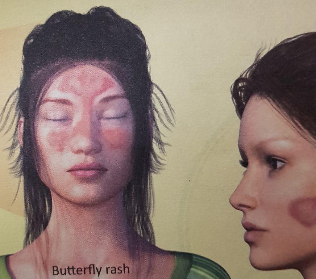 www.DokterRematikAutoimun.com - Kemerahan Diwajah yang Khas pada Penderita Lupus