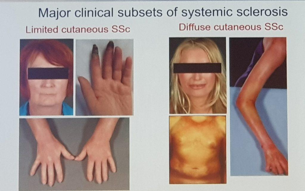 www.DokterRematikAutoimun.com - Kulit yang Mengeras pada Skleroderma
