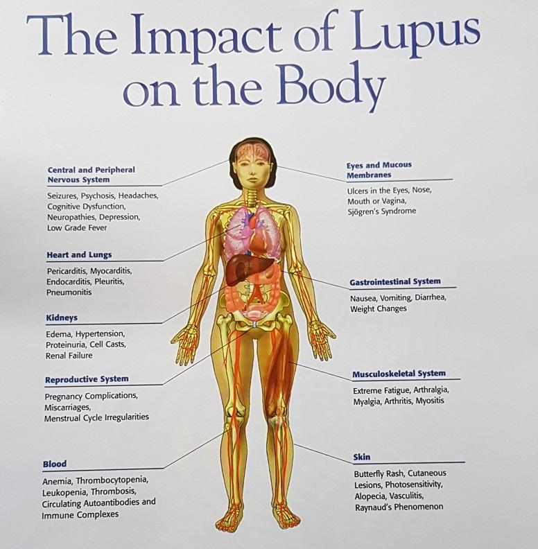 www.DokterRematikAutoimun.com - Lupus 1