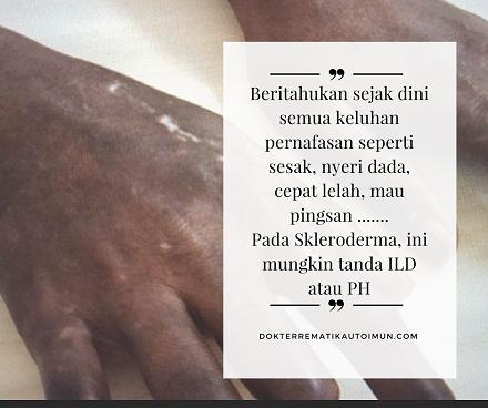 Skleroderma Lung Disease 1b