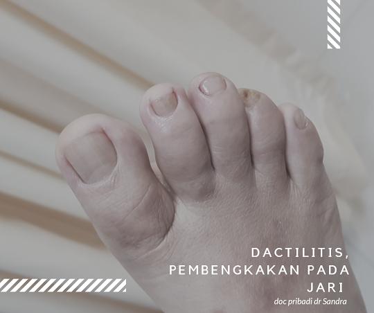 psoriatik artritis