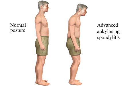 Lebih Mengenal Gejala Ankylosing Spondylitis