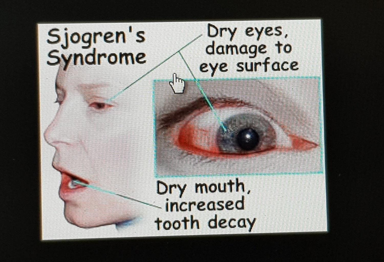 www.DokterRematikAutoimun - Sjogren's Syndrome