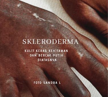 Skleroderma 1