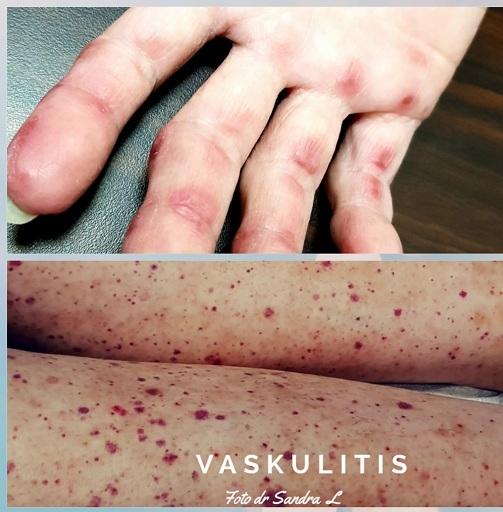 Penampakan vaskulitis