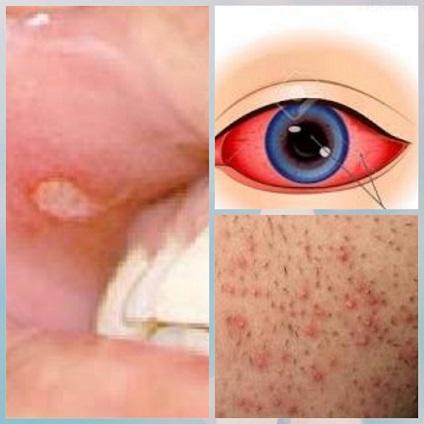 behcet's disease bagian vaskulitis