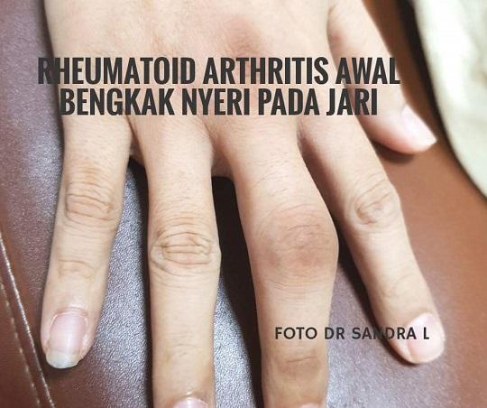 Bagaimana penanganan Rheumatoid Arthritis (RA)?