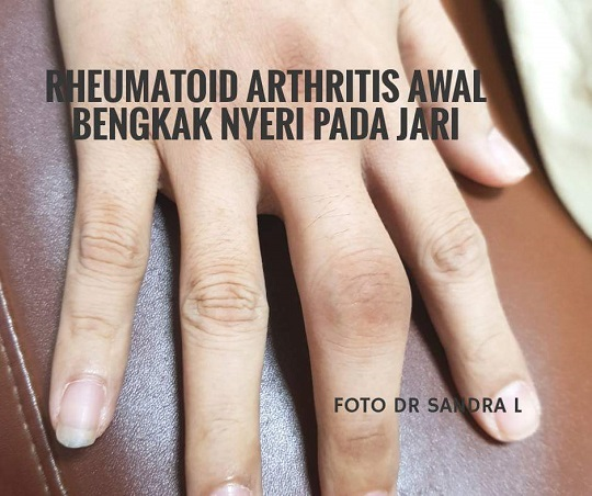 Gejala awal Rheumatoid Arthritis