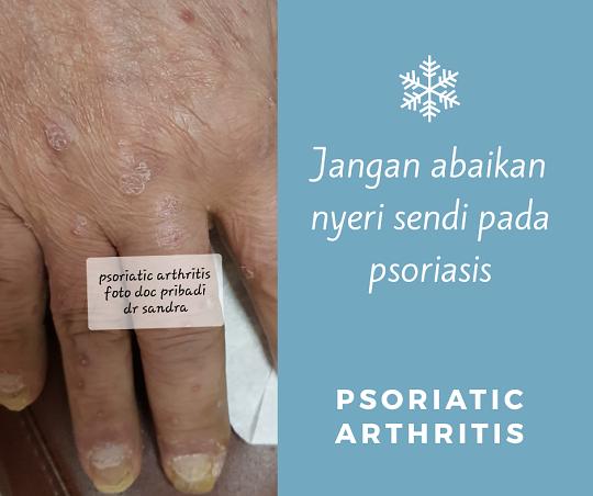 Adakah Hubungan Psoriasis dengan Nyeri Sendi?