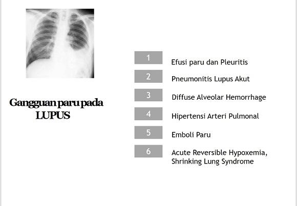 Lupus paru