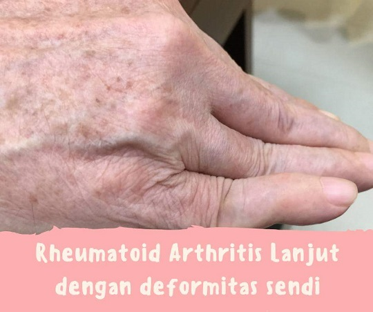 Rheumatod Artritis terapi 2