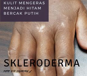 Skleroderma, Apakah itu? (Skleroderma part I)