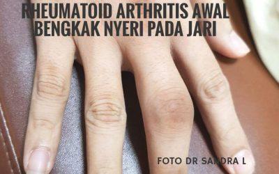 Hamil dengan Rheumatoid Artritis, Apa Mungkin?