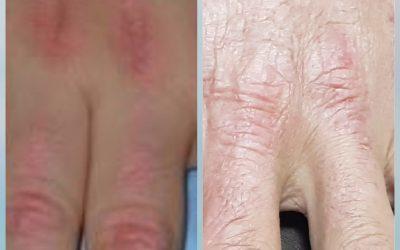 Mari Lebih Mengenal Dermatomiositis
