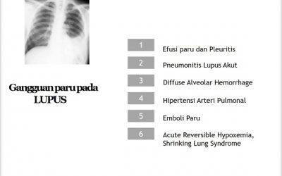 Kelainan Paru-paru pada Lupus