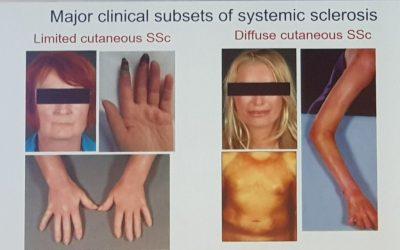Skleroderma dan Lupus, Apakah Sama?