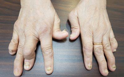 Artritis Psoriatik, Ketika Kulit dan Sendi Menjadi Sahabat