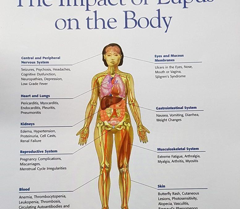Lupus dan Ginjal (Lupus Nefritis)